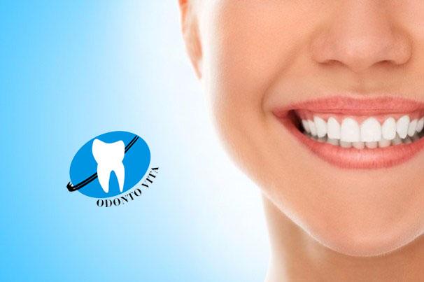 IBATÉ-A Odonto Vita conta com clareamento dental